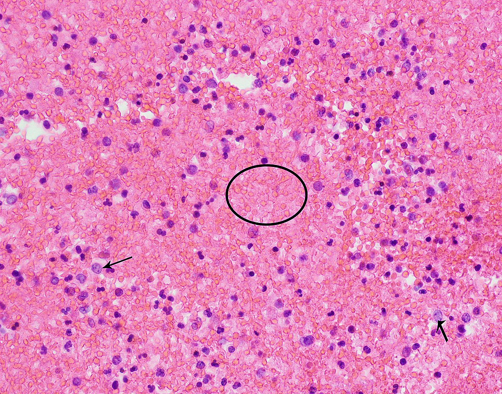 Bronchoscopy-lavage-smear-shows-scattered-macrophages-(black-arrows)-in-the-background-of-numerous-red-blood-cells-(marked-with-circle)