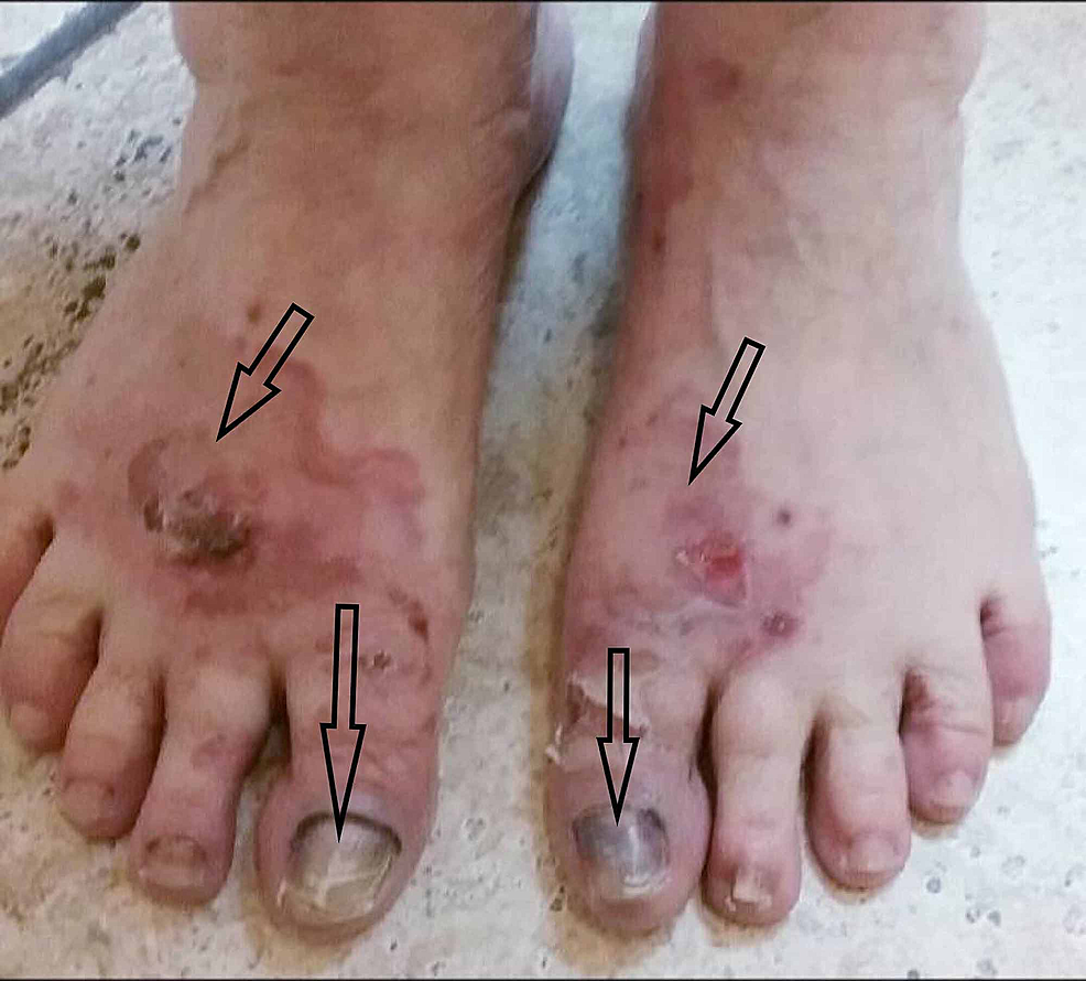 Ruptured-bullae-with-open-wounds-on-the-bilateral-feet,-nail-dystrophy-with-hyperpigmentation.