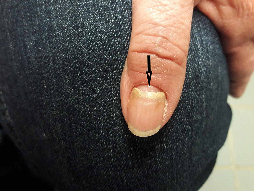 Onychomadesis-of-the-nails---shedding-of-the-nails-beginning-at-the-proximal-end.