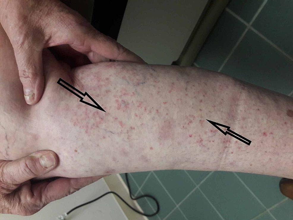 Recurrence-of-rash-on-5-mg-prednisone.