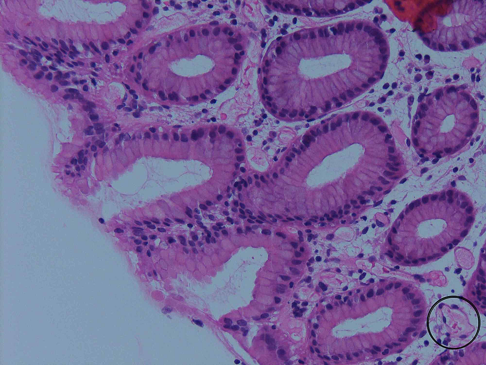 Random-biopsy-of-the-colon-showing-minimal-nonspecific-architectural-changes,-mild-chronic-inflammation,-and-vascular-ectasia-in-the-lamina-propria-(circled).