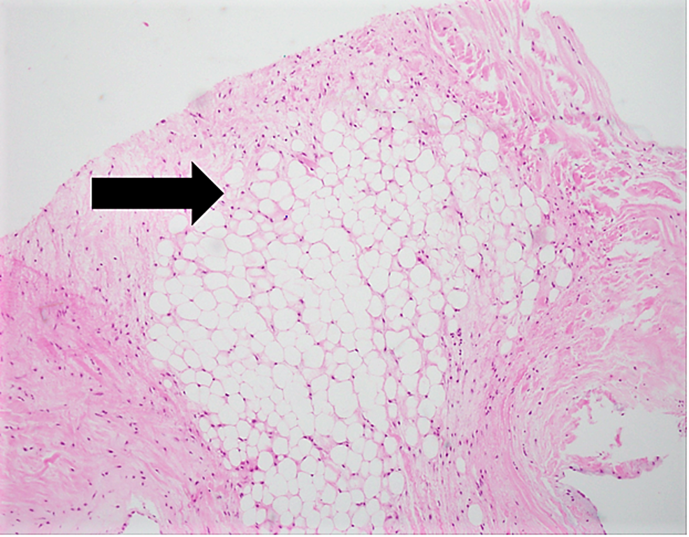 Hematoxylin-and-eosin-stained-micrograph-of-the-mitral-valve-showing-the-replacement-of-spongiosa-layer-with-mature-adipocytes-(H&E,-20X)