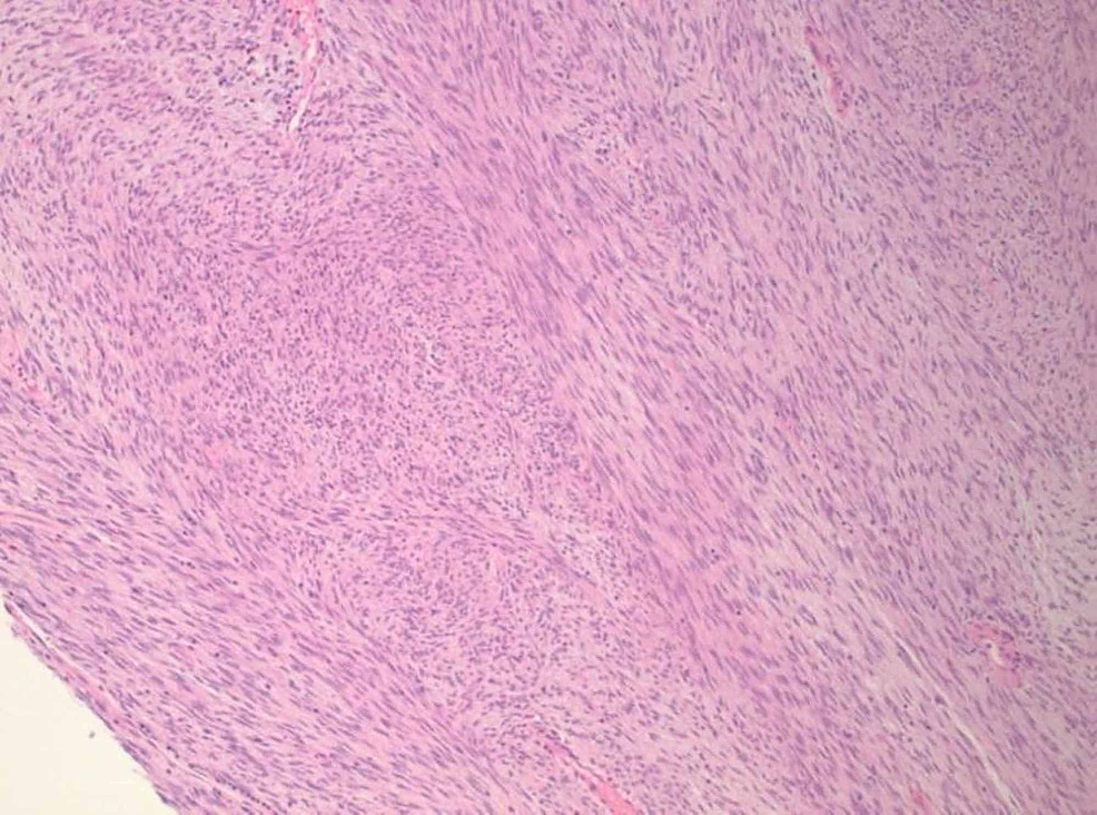 H&E-stained-section-of-the-tumor-showing-a-cellular-proliferation-with-a-fascicular-architectural-configuration-(100x-original-magnification)