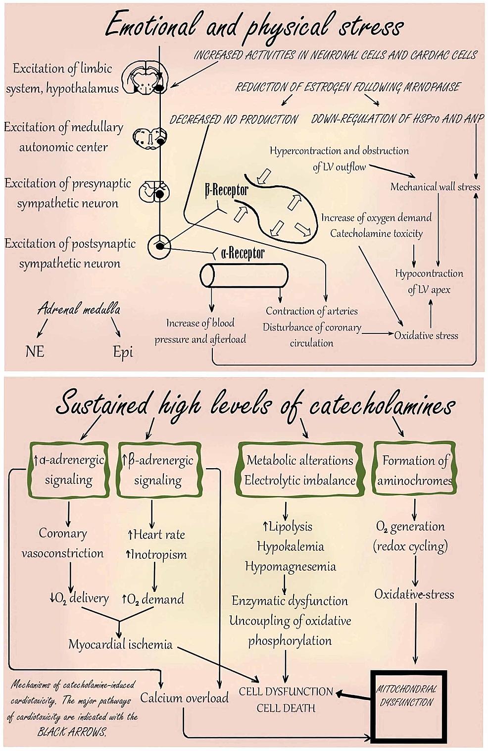 Pathogenesis-of-Takotsubo-cardiomyopathy-
