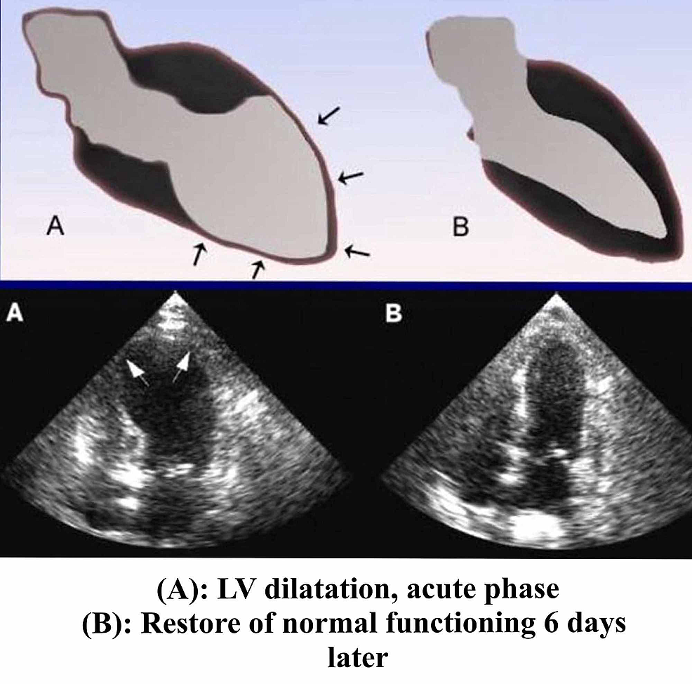 Echocardiographic-changes-in-TTC-
