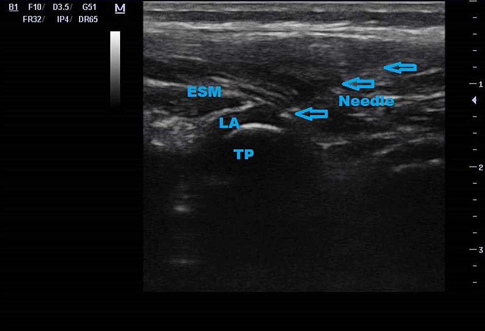 Ultrasound-image-of-erector-spinae-plane-block;-blue-arrows-indicate-needle