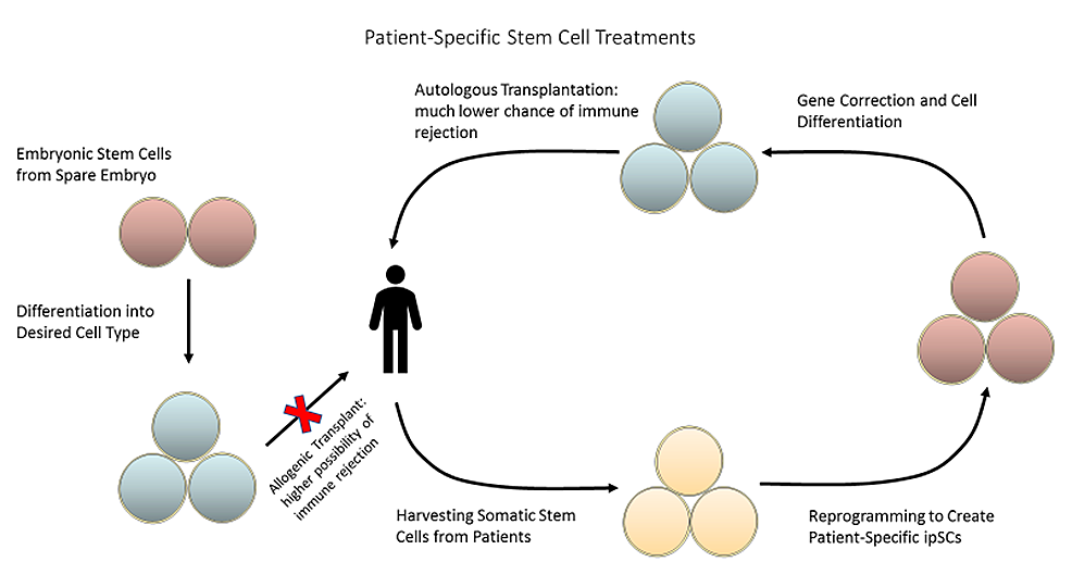 Somatic-stem-cells-can-be-harvested-from-the-patient-and-reprogrammed-into-induced-pluripotent-stem-cells-(ipSCs)-to-create-patient-specific-therapies,-reducing-the-risk-of-immune-rejection