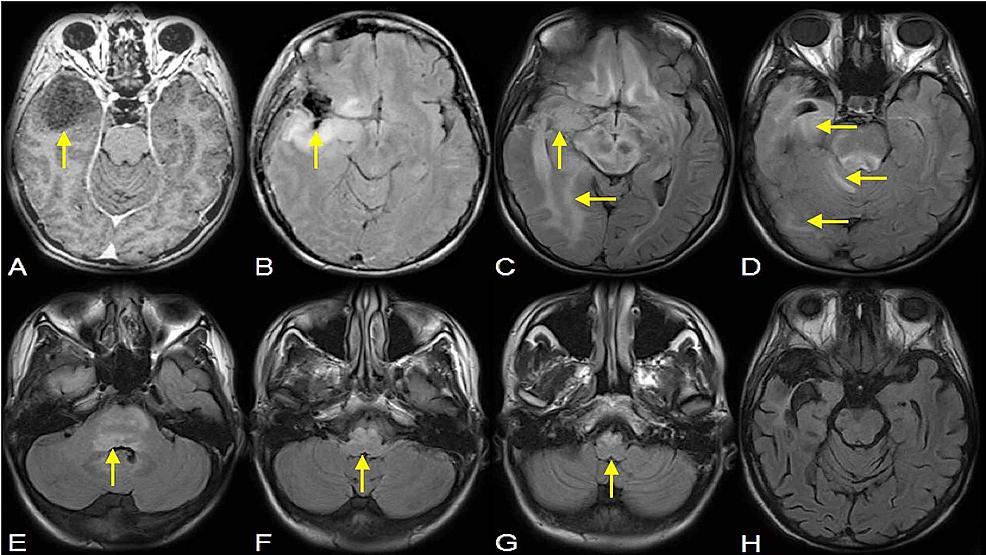 Gliomatosis-Cerebri-Radiographic-Representation