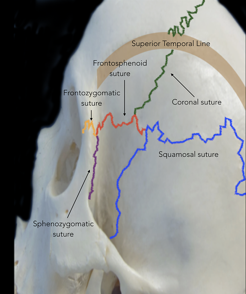 Cranial-sutures-involved-in-the-pterional-approach