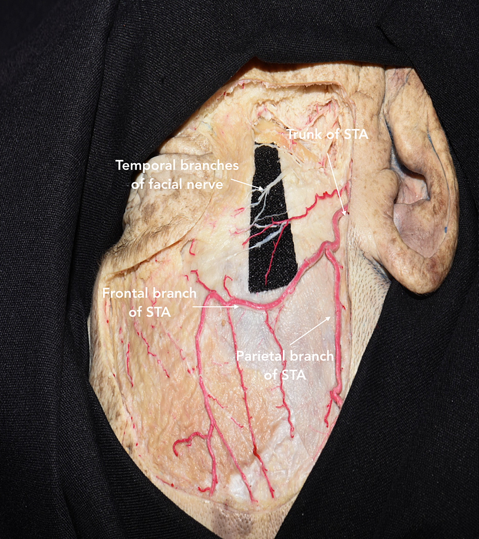 Dissection-showing-the-course-of-the-superficial-temporal-artery-(STA)-and-temporal-branches-of-the-facial-nerve-(TBFN)