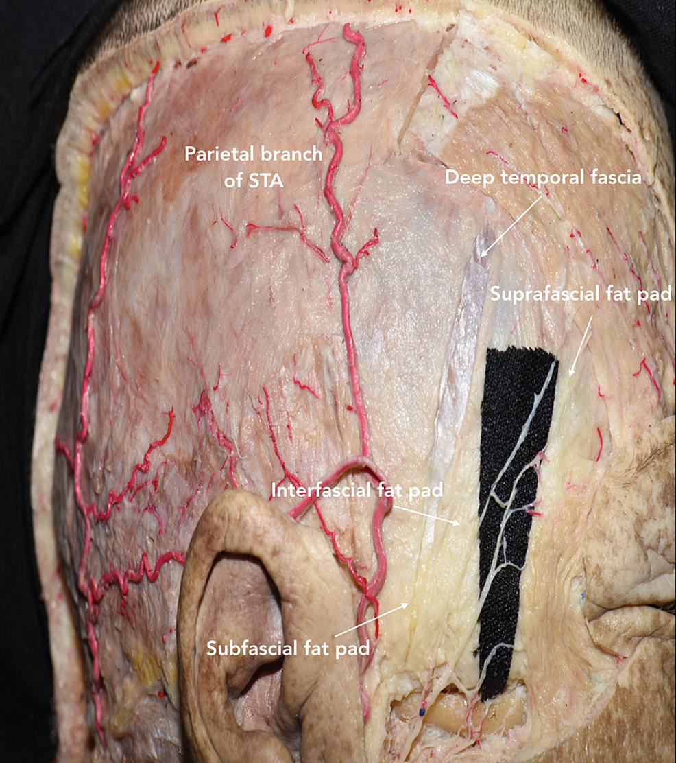 Lateral-view-of-head-showing-the-three-fat-pads-(suprafascial,-interfascial,-subfascial),-galea,-deep-temporal-fascia,-and-periosteum