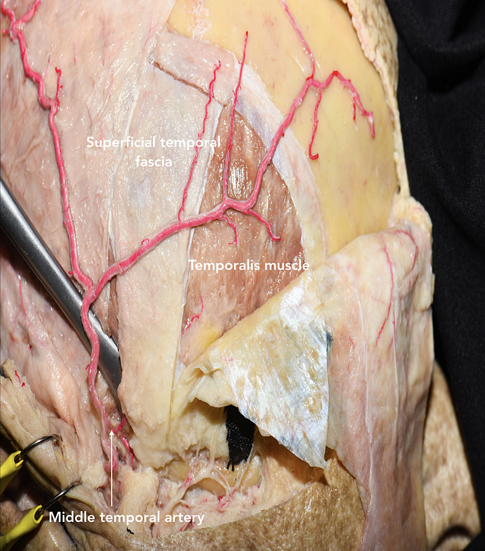Oikawa-technique-for-dissecting-the-temporalis-muscle-inferiorly-to-superiorly