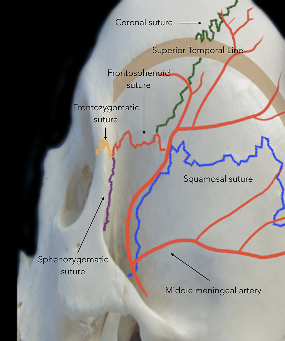 Lateral-view-of-skull-showing-the-course-of-the-middle-meningeal-artery