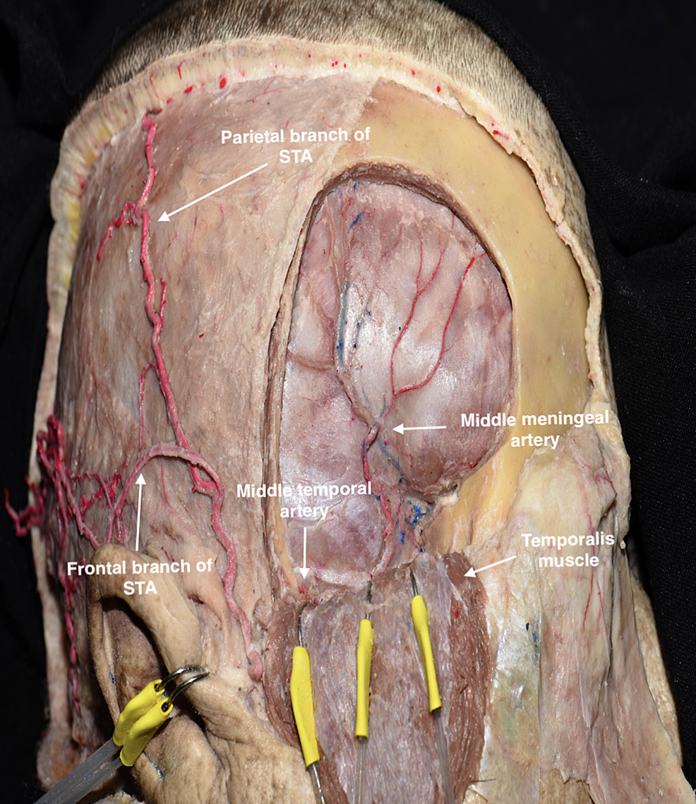 Pterional-bone-flap-was-removed-to-illustrate-the-course-of-the-anterior-branch-of-the-middle-meningeal-artery-below-the-pterion