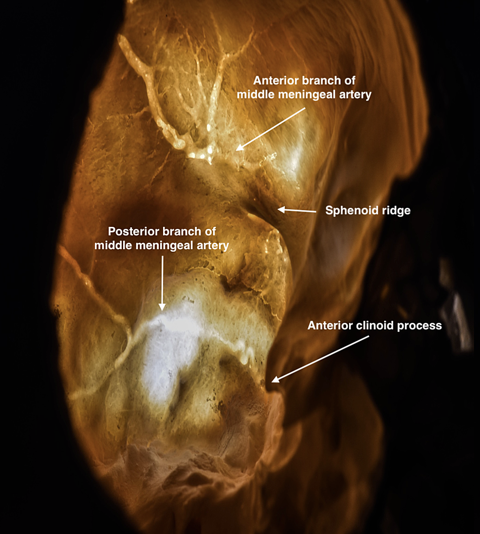 Transillumination-of-the-skull-showing-the-course-of-the-middle-meningeal-artery