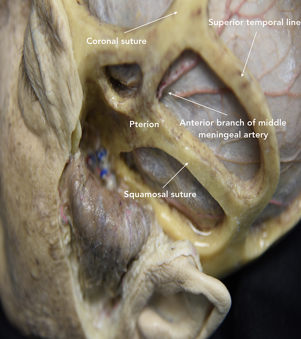 Lateral-view-showing-windows-of-the-pterional-approach-based-on-cranial-sutures