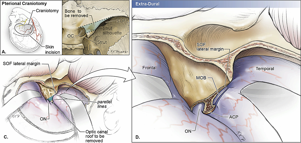 Schematic-drawings-of-a-right-pterional-approach-with-extra-dural-removal-of-the-anterior-clinoid-process-
