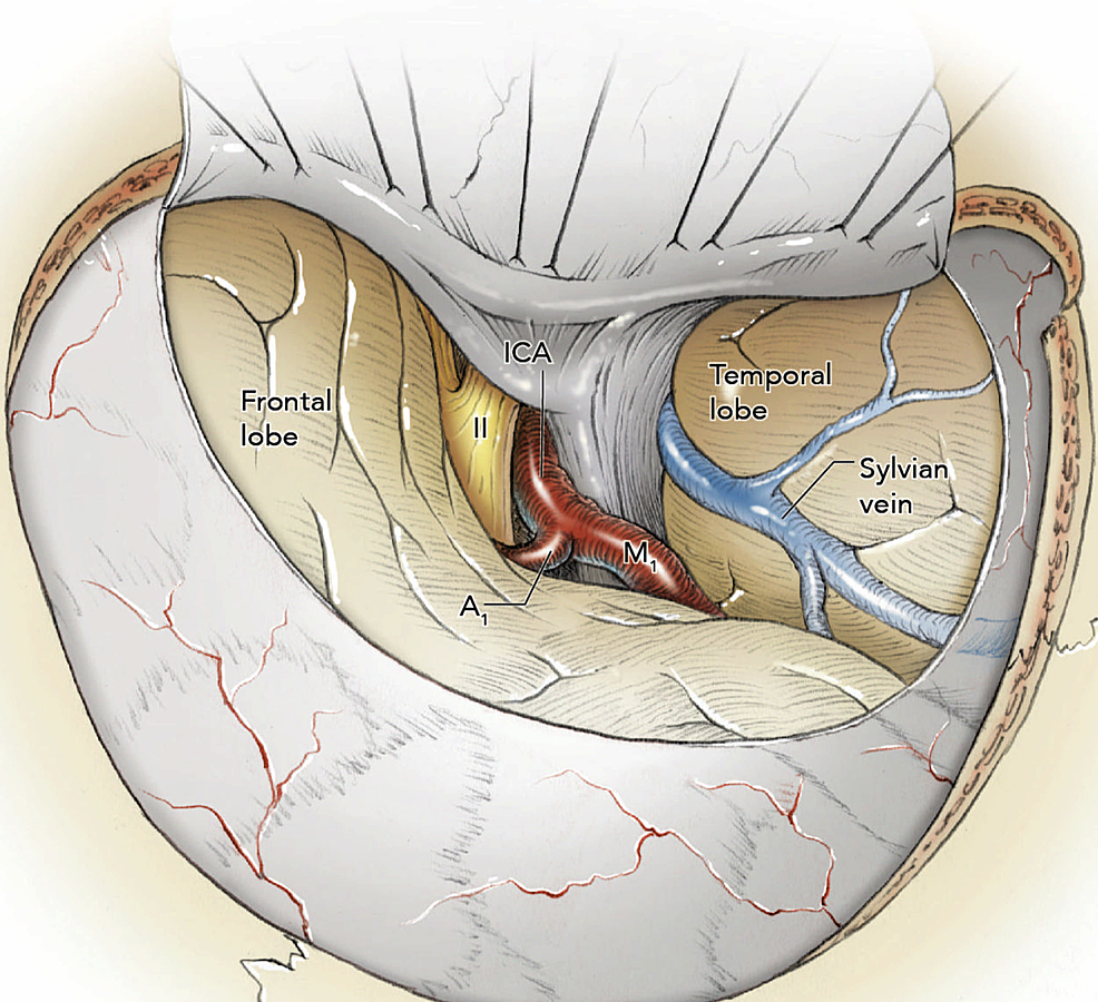 Intraoperative-view-after-the-dural-opening