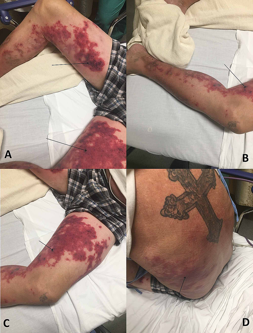 Levamisole-induced-vasculitis-in-a-cocaine-user.-Images-obtained-one-week-after-cocaine-use.