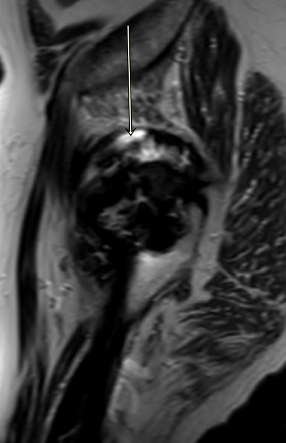 MARS-image-of-right-hip-showing-pseudotumor-(Sagittal-T2)