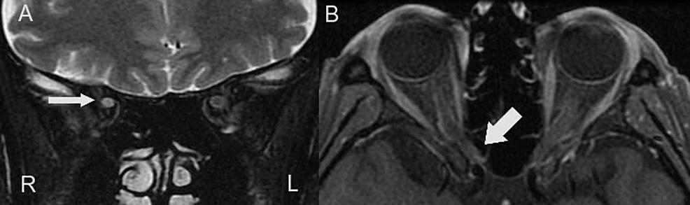 Optic-nerve-MRI-findings.