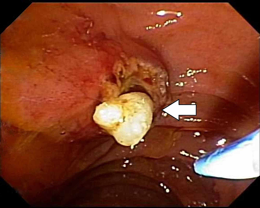 The-arrow-depicts-minor-papilla-stone-extraction-after-sphincterotomy