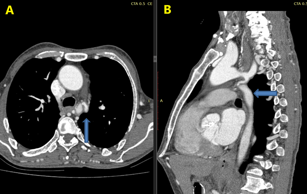 CT-scan-showing-a-narrowed-segment-of-the-aorta:-(A)-axial,-(B)-sagittal.