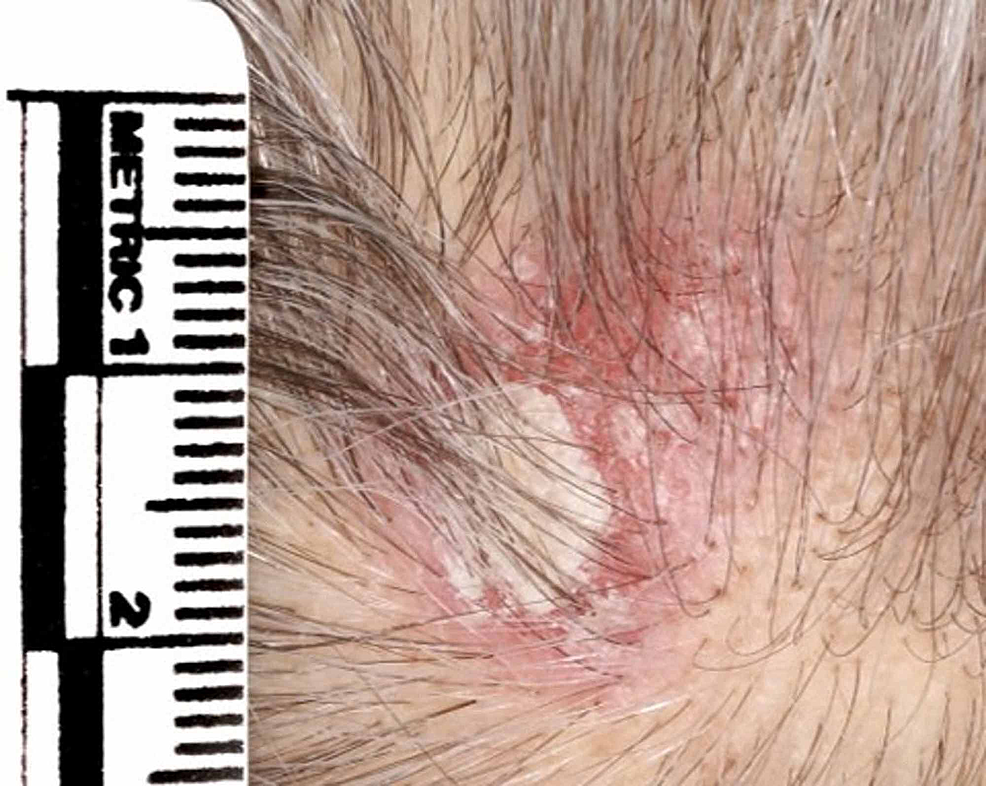 Indurated-erythematous-plaque-with-crusting-on-the-vertex-of-the-scalp.