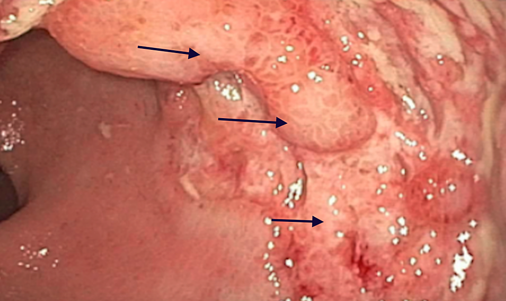 Colonoscopy-revealing-three-centimeter-(cm)-rectal-ulcer-with-heaped-up-margins-(black-arrows)