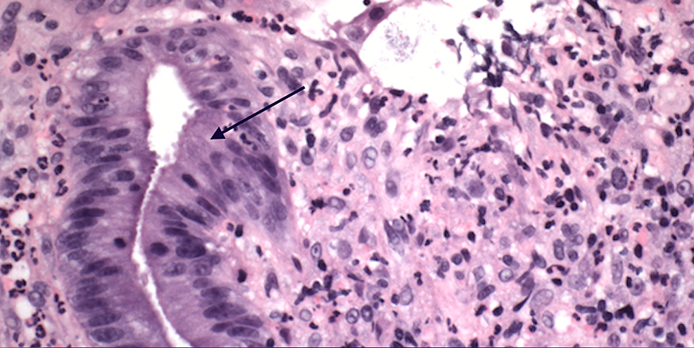 Light-microscopy-(hematoxylin-and-eosin,-400x)-showing-active-proctitis-and-ulceration-(black-arrow)