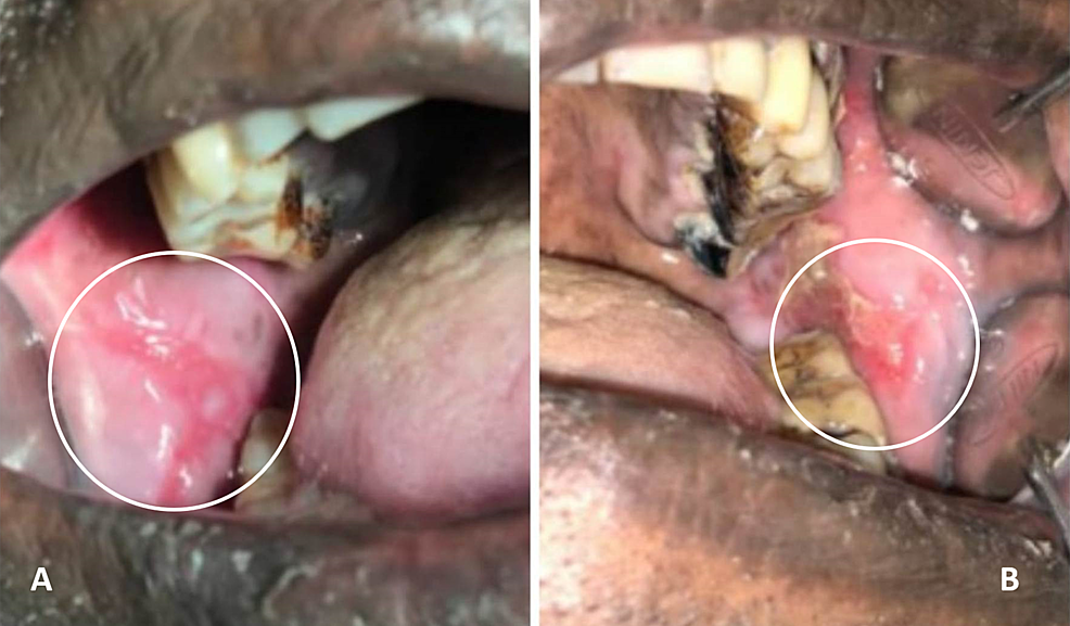 Intra-oral-lesion-on-the-right-(A)-and-left-(B)-buccal-mucosa