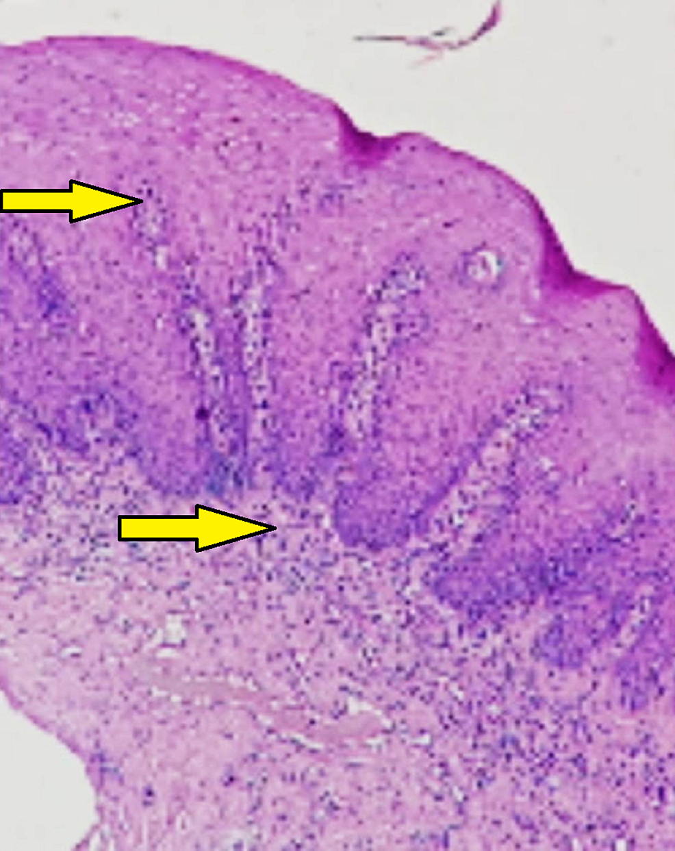 10X-view-showing-papillomatous-hyperplasia-with-juxta-epithelial-inflammatory-cell-infiltration