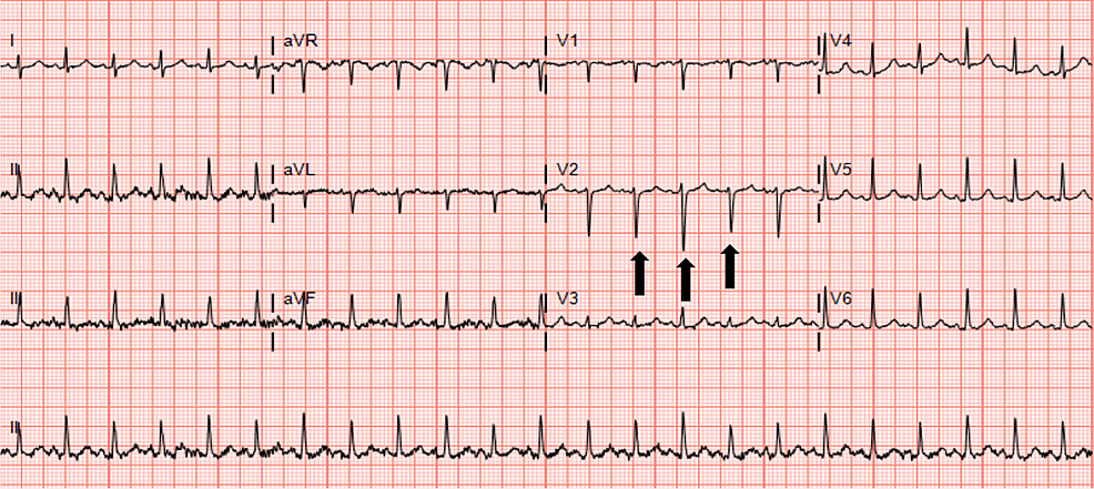 Electrocardiogram-(ECG)-revealing-sinus-tachycardia-and-electrical-alternans-