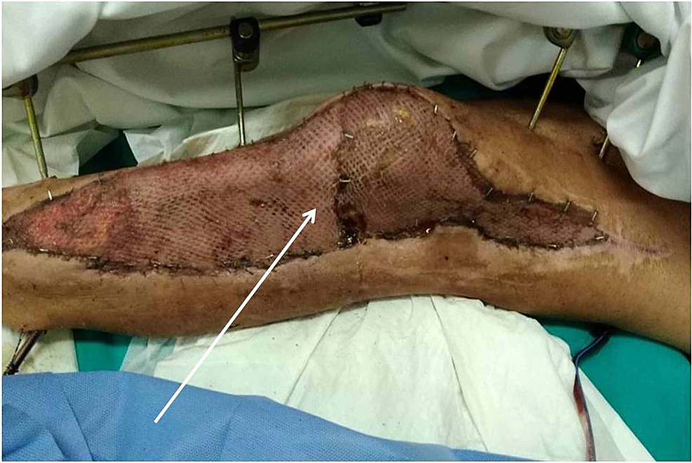First-wound-change-five-days-after-the-application-of-skin-graft
