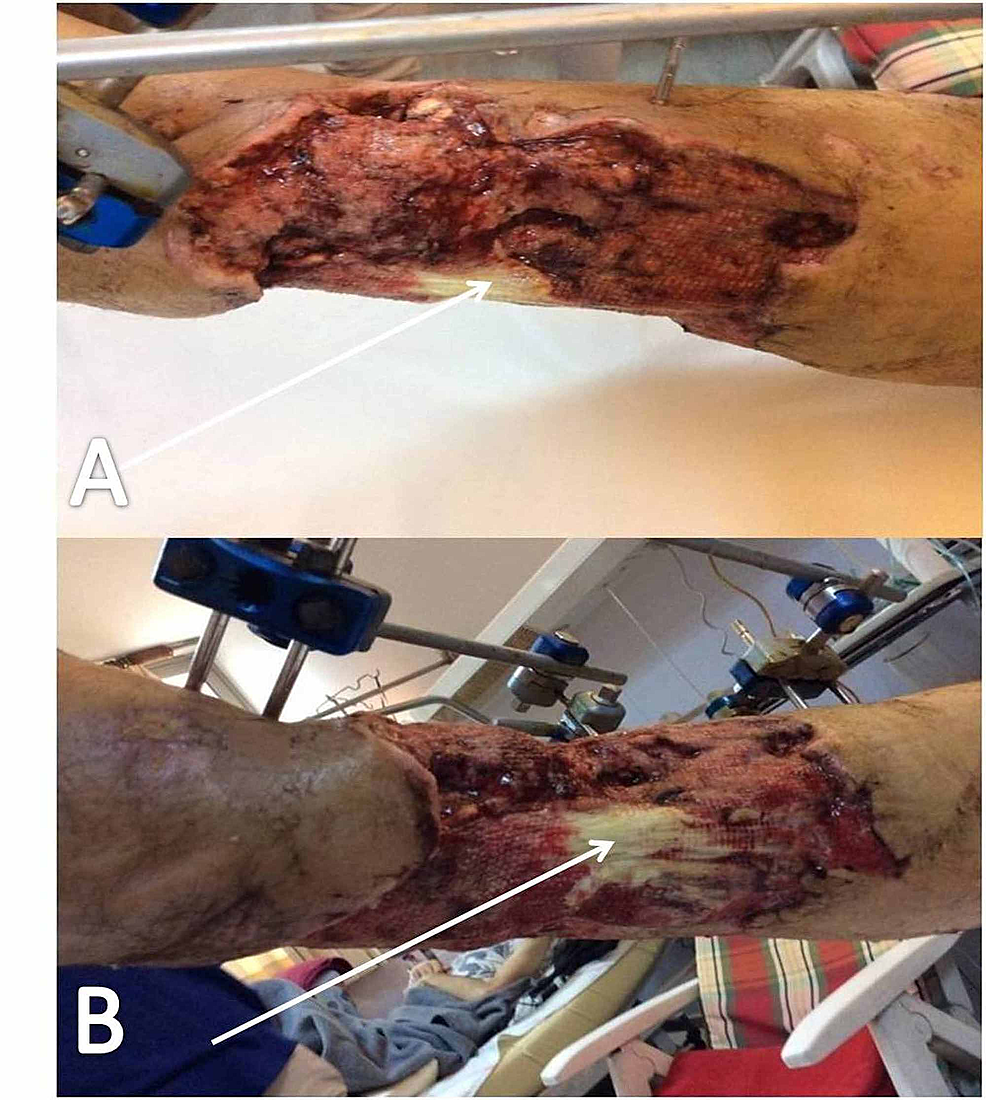 Wound-appearance-one-week-postoperatively,-after-radical-surgical-debridement-and-NPWTS-application