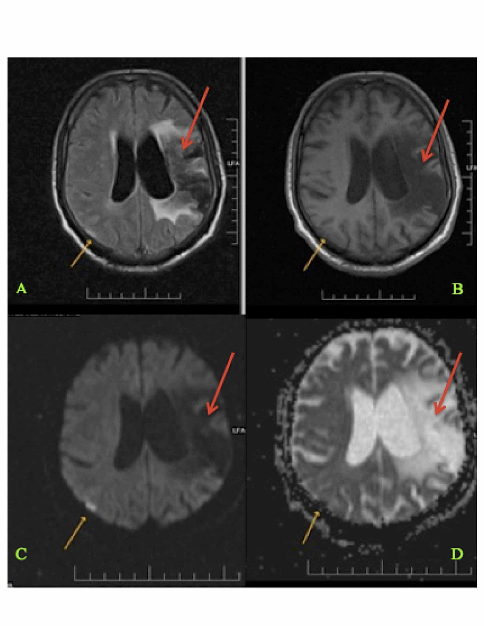 Magnetic-Resonance-Imaging-(MRI)-of-the-Brain-Showing-Current-and-Previous-Infarction-Sites-(Panels-A-D)