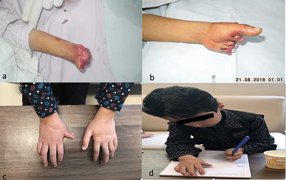 2a-and-2b-showing-bilateral-transmetacarpal-amputation-in-a-six-year-old-boy-due-to-a-grass-cutting-machine.-2c-showing-the-replanted-hands-after-tenolysis-and-nerve-repair.-2d-showing-good-function-achieved-after-secondary-procedures.