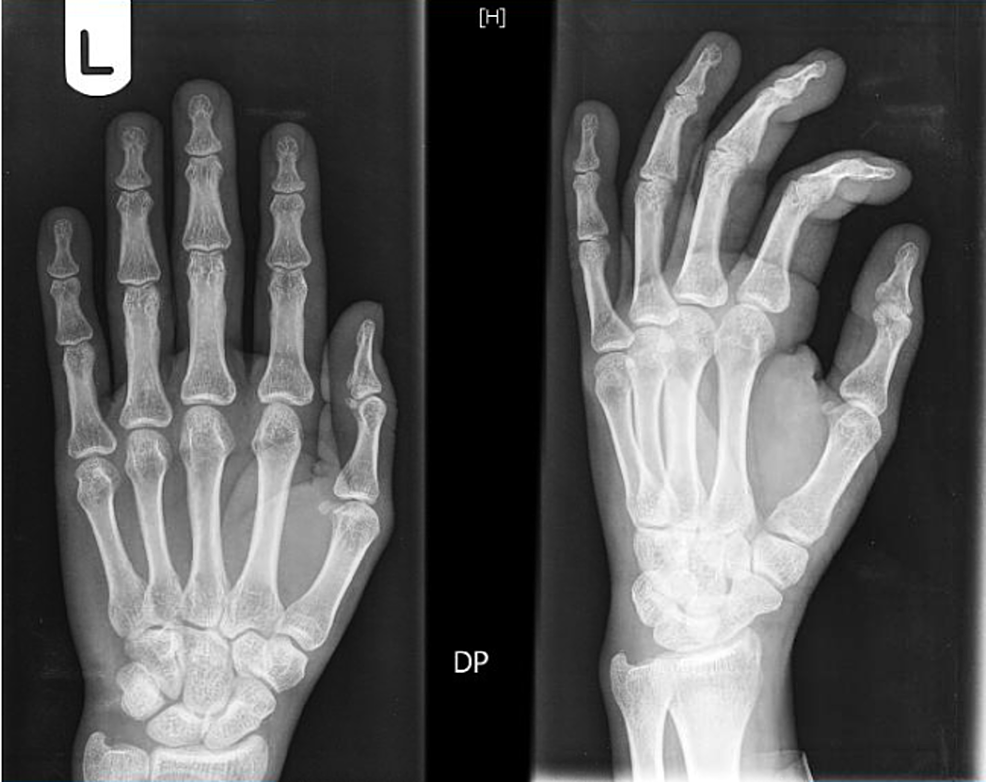 """X-ray-of-the-left-hand-showing-""""no-bony-abnormality,-evidence-of-erosive-arthropathy,-or-fracture-or-dislocation."""""""