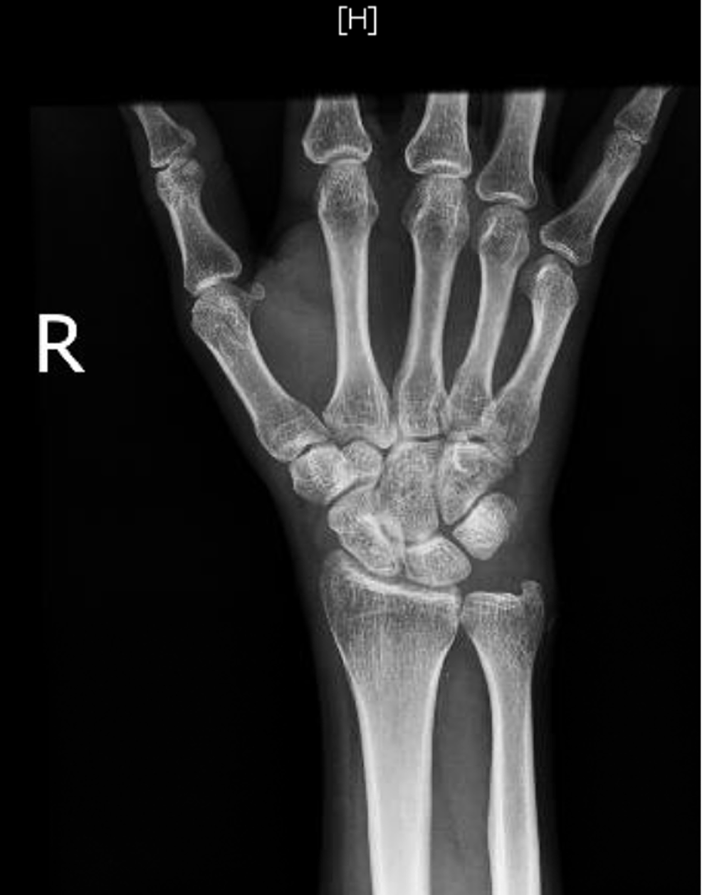 """X-ray-of-the-right-hand-showing-""""no-bony-abnormality,-evidence-of-erosive-arthropathy,-or-fracture-or-dislocation."""""""