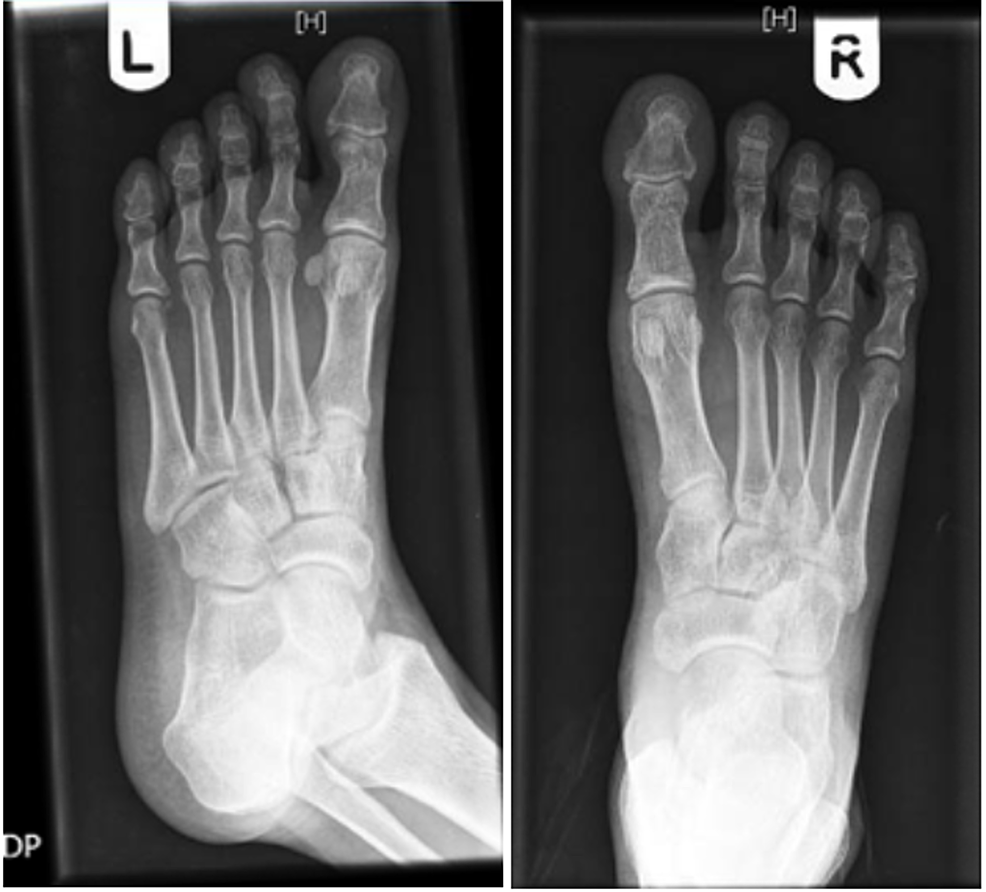 """X-ray-of-the-feet-(the-left-foot-and-right-foot-are-indicated-by-(L)-and-(R)-on-the-top,-respectively)-showing-""""no-bony-abnormality,-evidence-of-erosive-arthropathy,-or-fracture-or-dislocation."""""""