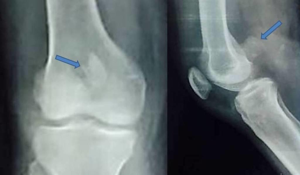 cureus a case of distal femur medial condyle hoffa type ii c
