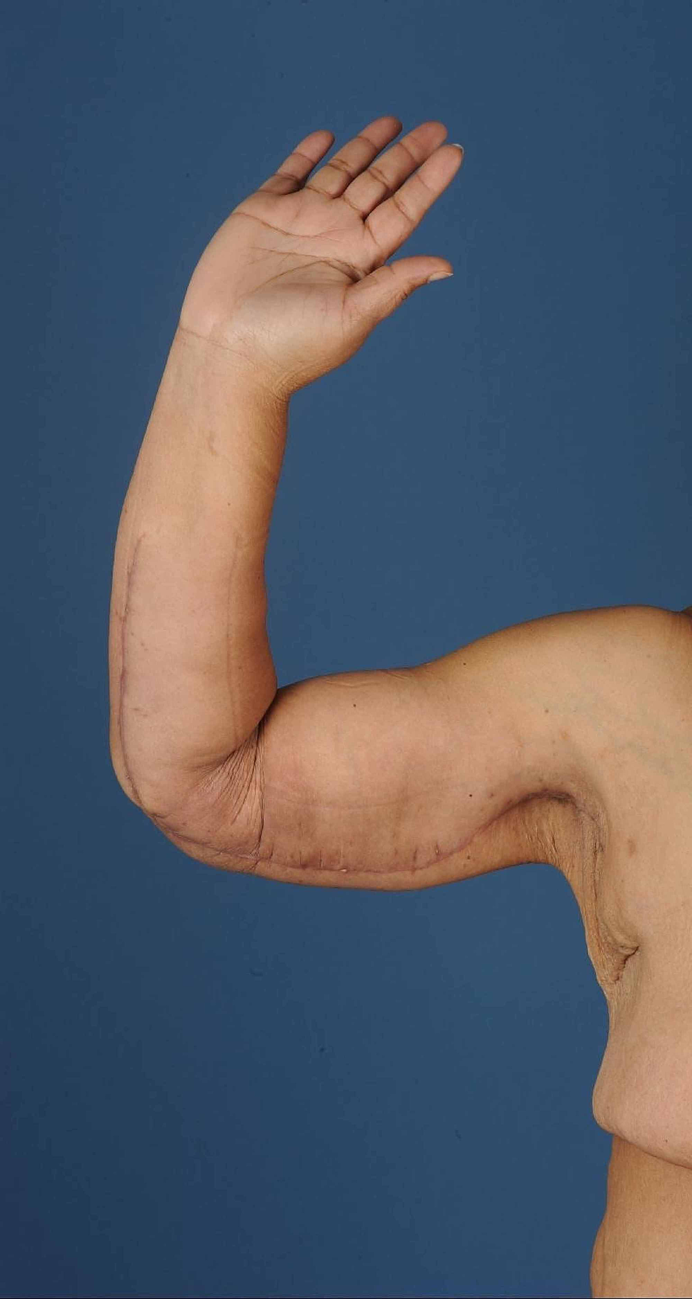 Right-upper-arm-after-dermolipectomy