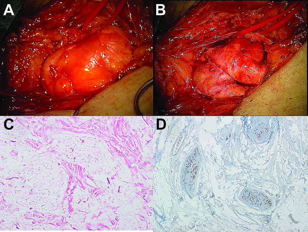 Intraoperative-photographs-and-histological-imaging