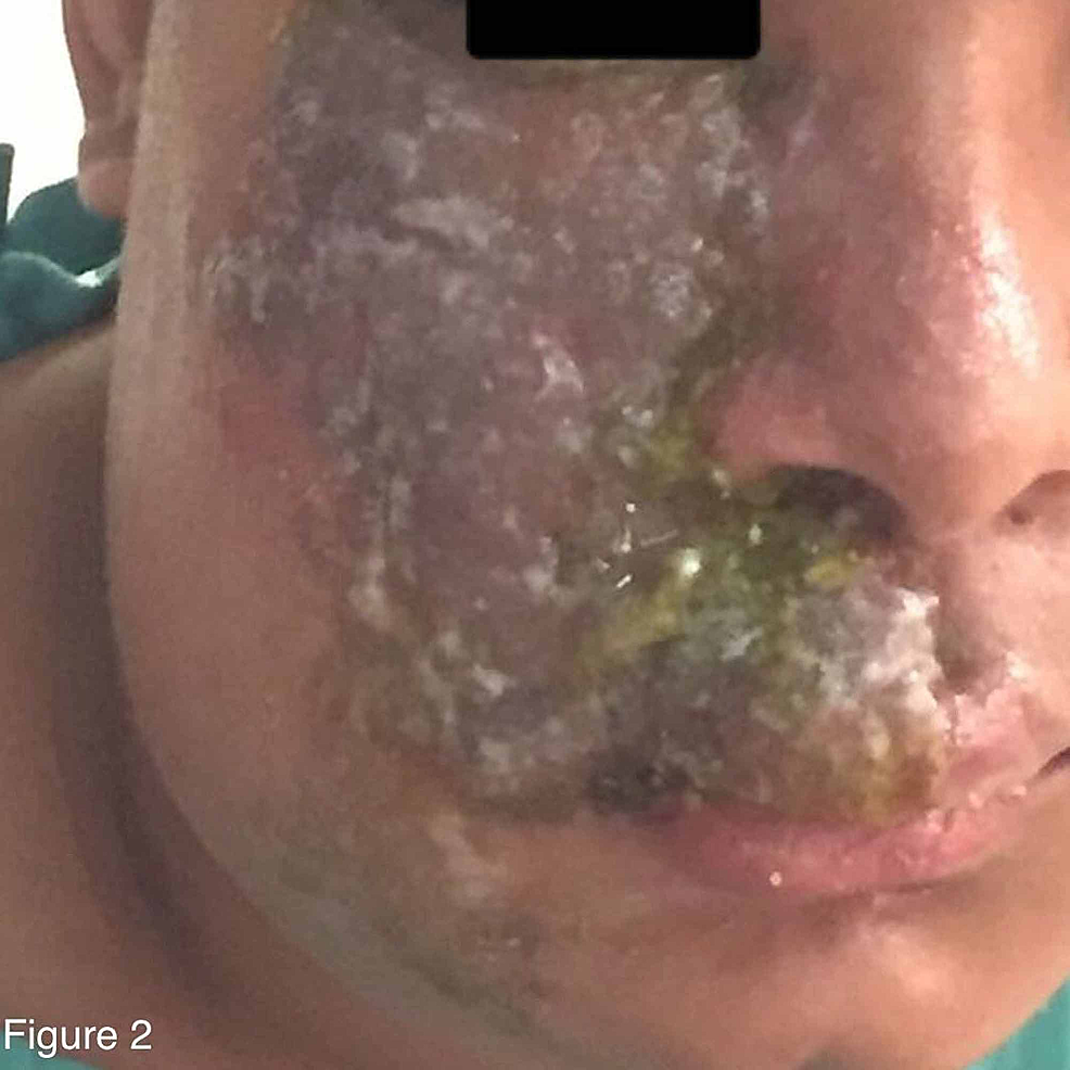 Crusting-lesions-with-yellowish-discoloration-that-resulted-from-ruptured-bullae-by-the-end-of-the-first-week-of-admission-