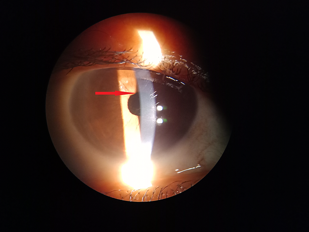 Noninflamed-eye-at-three-months-postoperative-with-patches-of-iris-atrophy-at-the-initial-site-of-lesion.