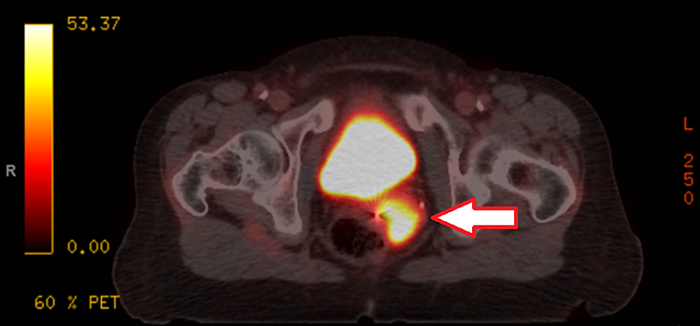 Positron-emission-tomography-(PET)-scan-demonstrating-a-fludeoxyglucose-(FDG)-avid-uterine-cervical-mass