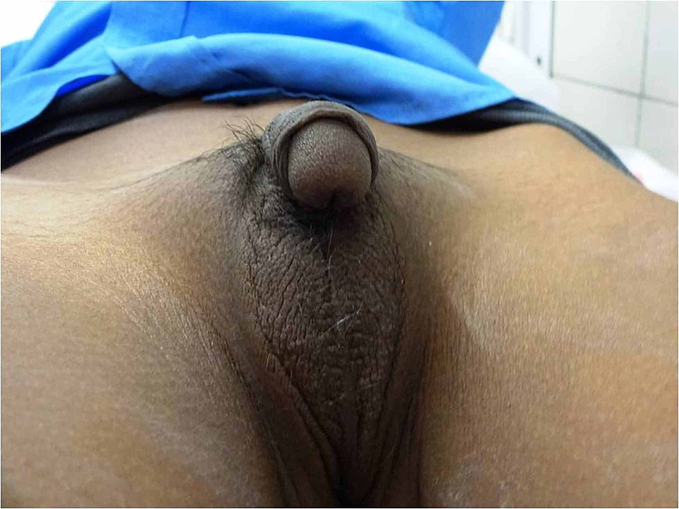 Clinical-photograph-showing-fused-labioscrotal-folds-with-absent-gonads,-ventral-chordee,-and-penoscrotal-hypospadias