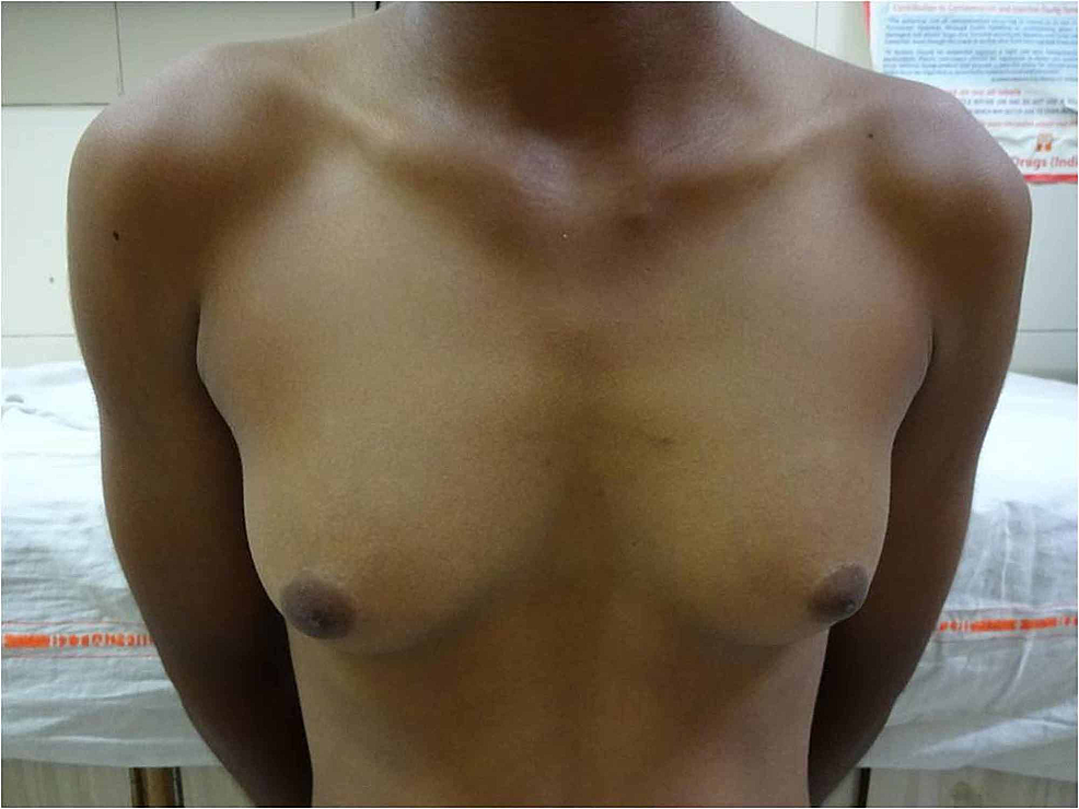 Clinical-photograph-showing-Tanner-stage-3-breast-development
