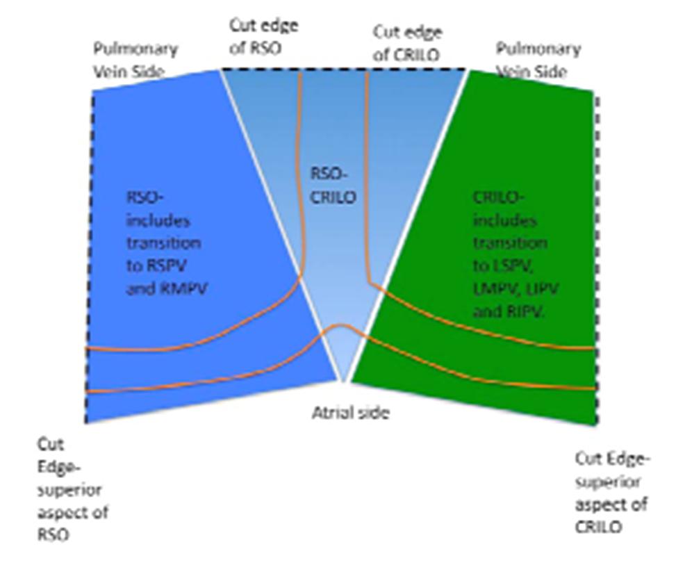 Histologic-sectioning-diagram-of-the-left-atrium.