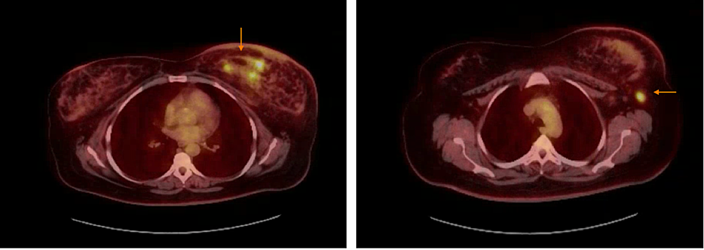 PET-CT-showing-multiple-areas-of-increased-radiotracer-activity-in-the-inferior-left-breast-with-a-maximum-SUV-of-7.73-and-lymph-nodes-in-the-left-axilla,-largest-measures-1.4-x-1.0-cm.-This-lymph-node-has-a-maximum-SUV-of-6.41.